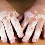 درمان ویتیلیگو(پیسی) با قهوه های گانودرما :)